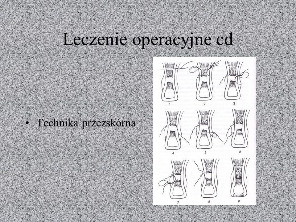 Leczenie operacyjne cd Technika przezskórna