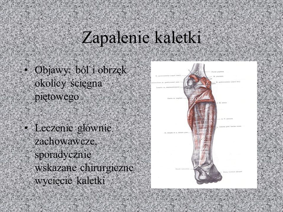 Zapalenie kaletki Objawy: ból i obrzęk okolicy ścięgna piętowego Leczenie głównie zachowawcze, sporadycznie wskazane chirurgiczne wycięcie kaletki