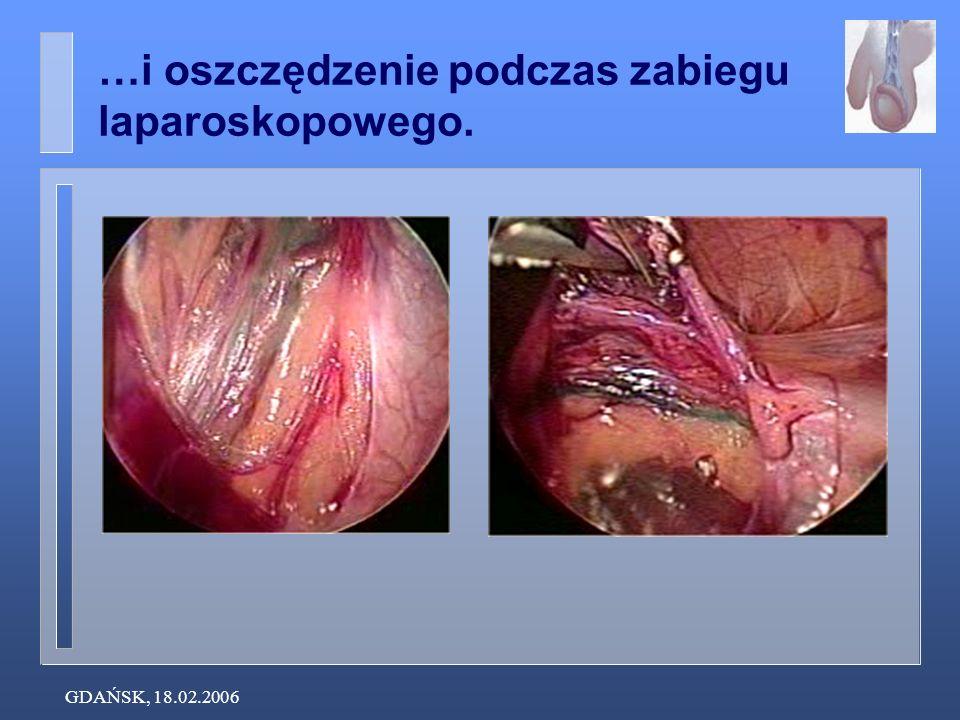 GDAŃSK, 18.02.2006 …i oszczędzenie podczas zabiegu laparoskopowego.