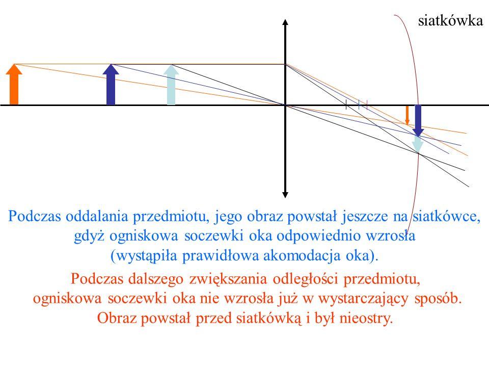 Krótkowzroczność Jak z nazwy wynika, krótkowidz widzi dobrze przedmioty znajdujące się w małej odległości, a przedmioty odległe-nieostro.