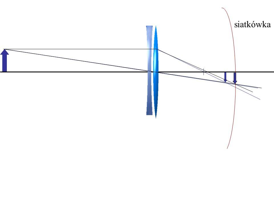 Krótkowzroczność go -to zbyt duża zdolność skupiająca soczewki oka (lub wydłużona gałka oczna) w wyniku czego obrazy odległych przedmiotów powstają pr