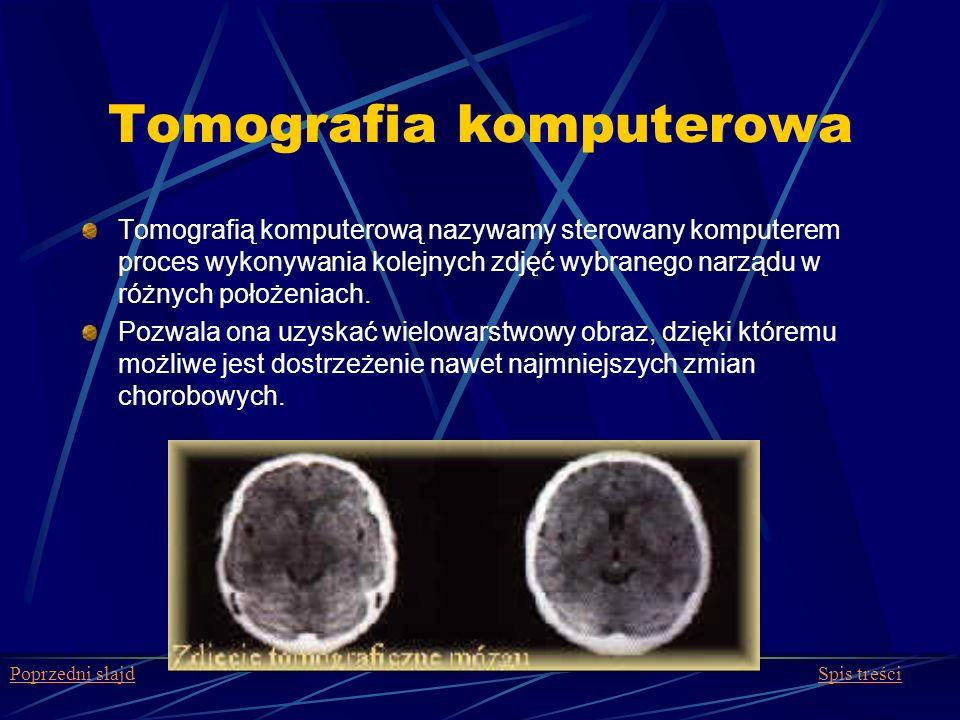 Tomografia komputerowa Tomografią komputerową nazywamy sterowany komputerem proces wykonywania kolejnych zdjęć wybranego narządu w różnych położeniach