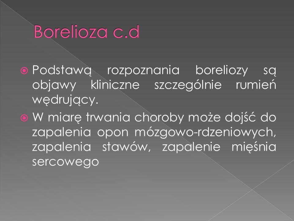 Podstawą rozpoznania boreliozy są objawy kliniczne szczególnie rumień wędrujący.