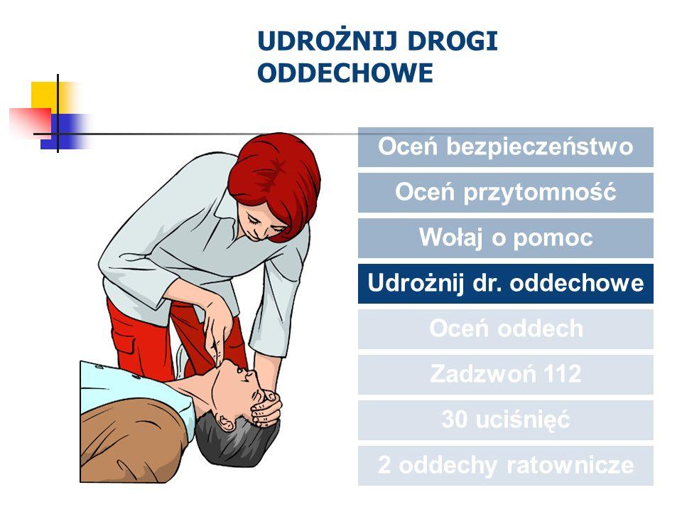 UDROŻNIJ DROGI ODDECHOWE Oceń bezpieczeństwo Oceń przytomność Wołaj o pomoc Udrożnij dr. oddechowe Oceń oddech Zadzwoń 112 30 uciśnięć 2 oddechy ratow