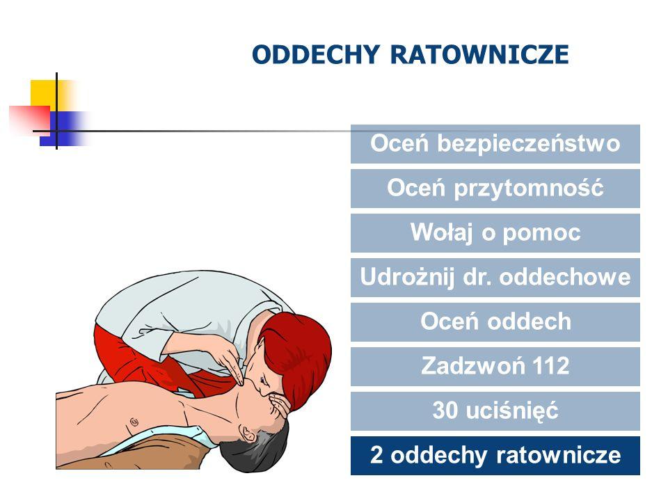 ODDECHY RATOWNICZE Oceń bezpieczeństwo Oceń przytomność Wołaj o pomoc Udrożnij dr. oddechowe Oceń oddech Zadzwoń 112 30 uciśnięć 2 oddechy ratownicze
