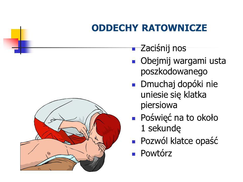 ODDECHY RATOWNICZE Zaciśnij nos Obejmij wargami usta poszkodowanego Dmuchaj dopóki nie uniesie się klatka piersiowa Poświęć na to około 1 sekundę Pozw