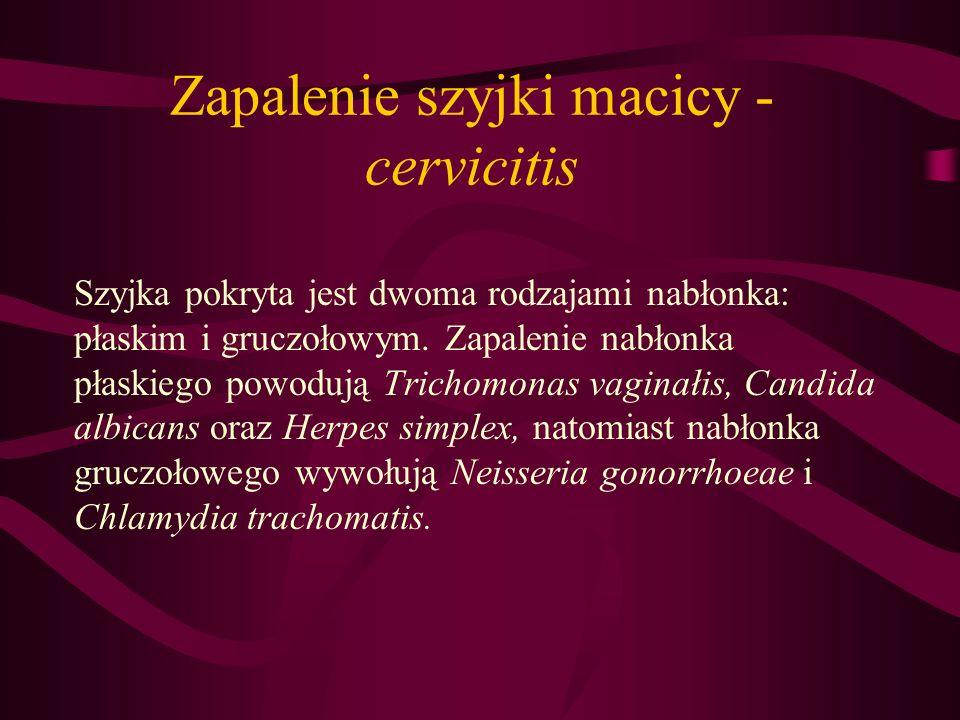 Zapalenie szyjki macicy - cervicitis Szyjka pokryta jest dwoma rodzajami nabłonka: płaskim i gruczołowym. Zapalenie nabłonka płaskiego powodują Tricho