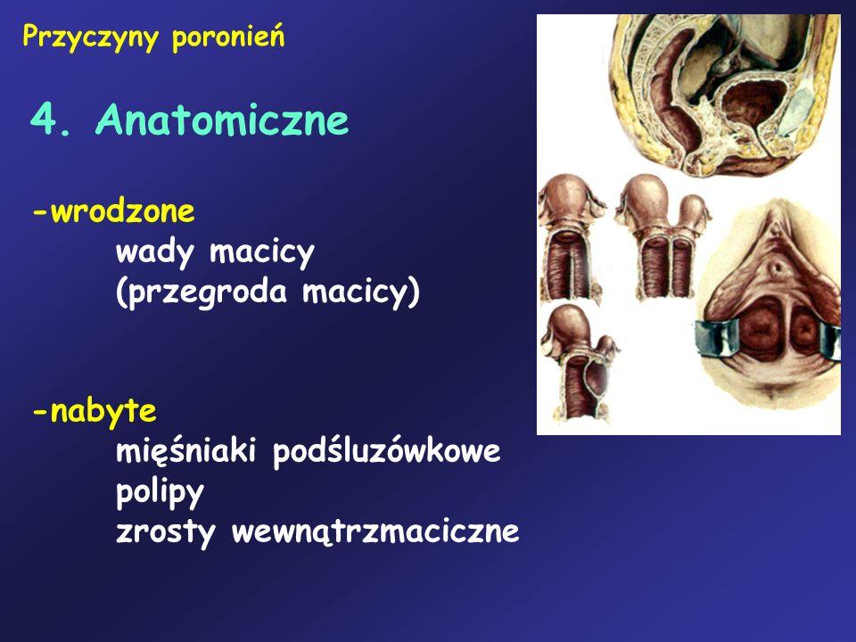 4. Anatomiczne -wrodzone wady macicy (przegroda macicy) -nabyte mięśniaki podśluzówkowe polipy zrosty wewnątrzmaciczne Przyczyny poronień