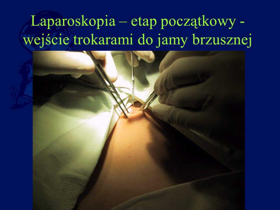 Laparoskopia – etap początkowy - wejście trokarami do jamy brzusznej