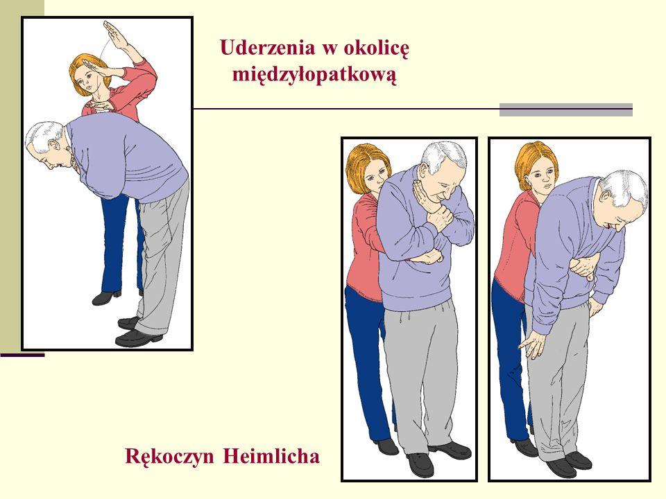 Uderzenia w okolicę międzyłopatkową Rękoczyn Heimlicha