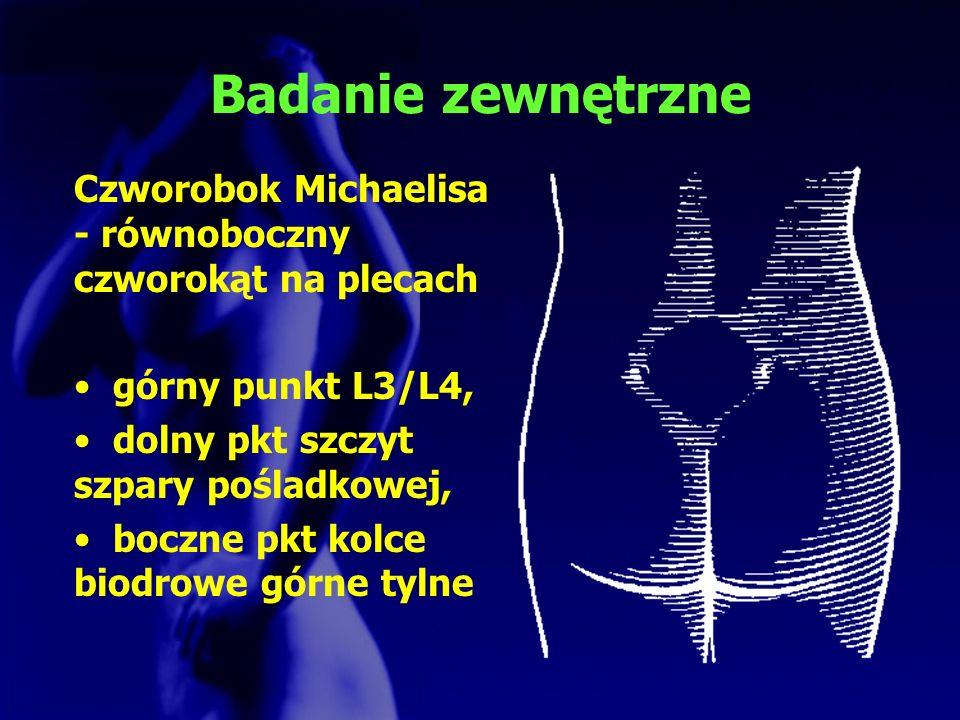 Badanie zewnętrzne Czworobok Michaelisa - równoboczny czworokąt na plecach górny punkt L3/L4, dolny pkt szczyt szpary pośladkowej, boczne pkt kolce bi