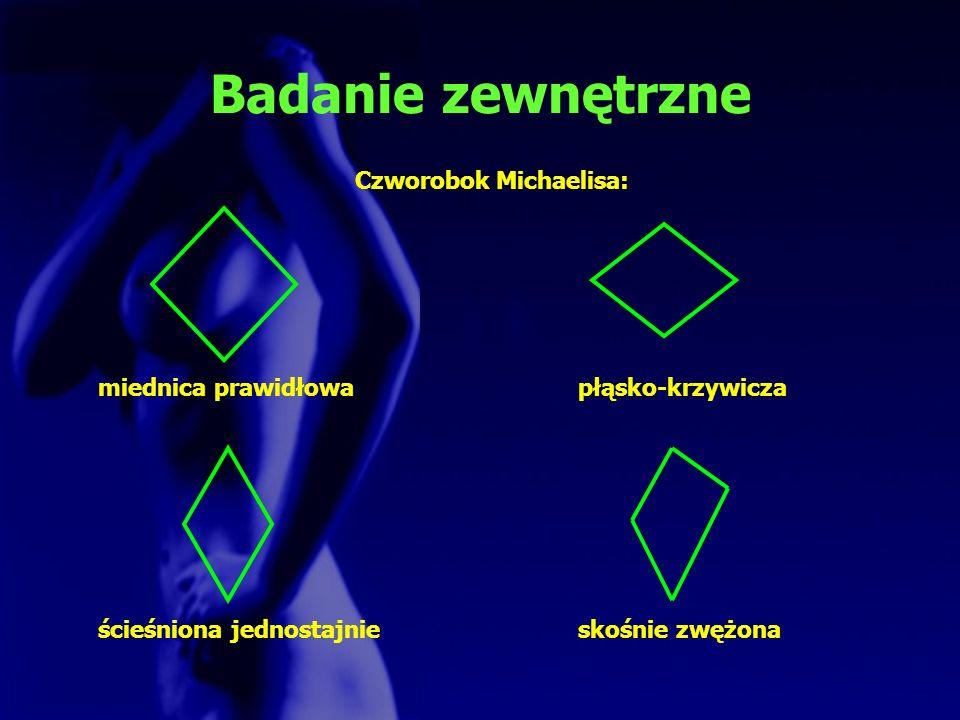Badanie zewnętrzne Czworobok Michaelisa: miednica prawidłowapłąsko-krzywicza ścieśniona jednostajnieskośnie zwężona