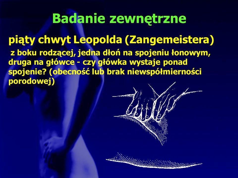 Badanie zewnętrzne piąty chwyt Leopolda (Zangemeistera) z boku rodzącej, jedna dłoń na spojeniu łonowym, druga na główce - czy główka wystaje ponad sp