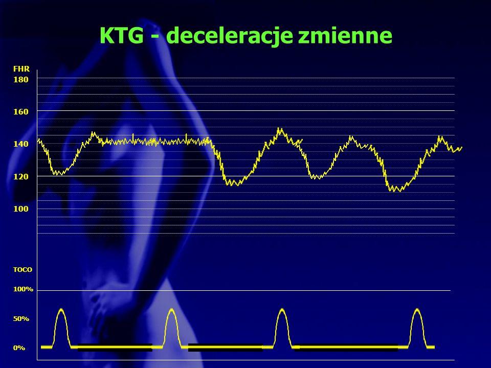 KTG - deceleracje zmienne FHR 180 160 140 120 100 TOCO 100% 50% 0%