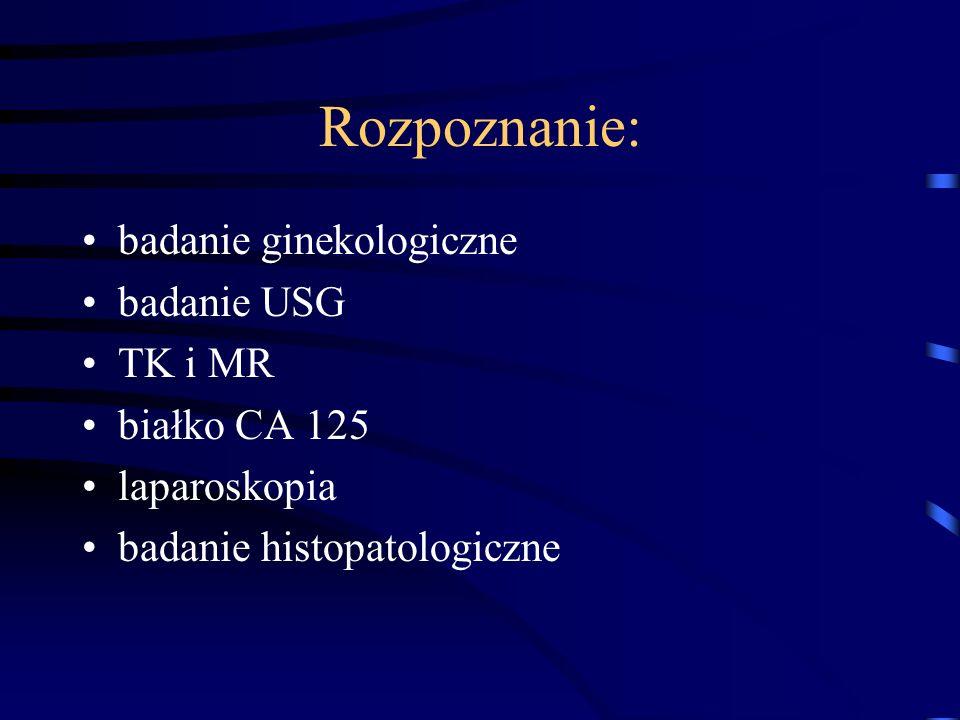 Rozpoznanie: badanie ginekologiczne badanie USG TK i MR białko CA 125 laparoskopia badanie histopatologiczne