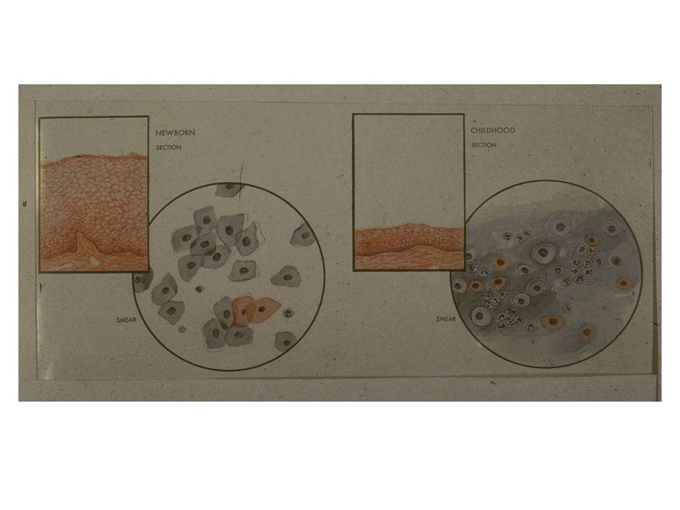 Wybrane normy hormonalne Surowica (7-9 dzień cyklu) – FSH 5 -10 IU/L – LH 5 -10 IU/L – PRL 5 -20 ng/ml – E2 40 -100 pg/ml – Testosteron 0,08 – 0,8 ng/ml – 17OH Progesteron 0,3 – 1,0 ng/ml