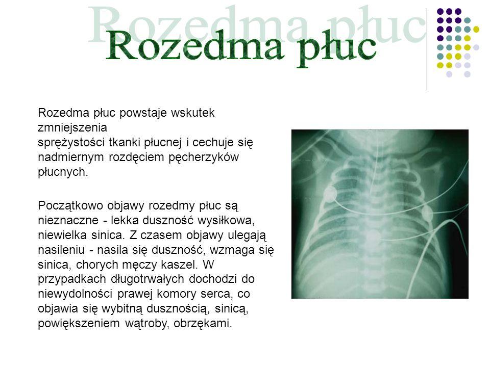 Rozedma płuc powstaje wskutek zmniejszenia sprężystości tkanki płucnej i cechuje się nadmiernym rozdęciem pęcherzyków płucnych. Początkowo objawy roze