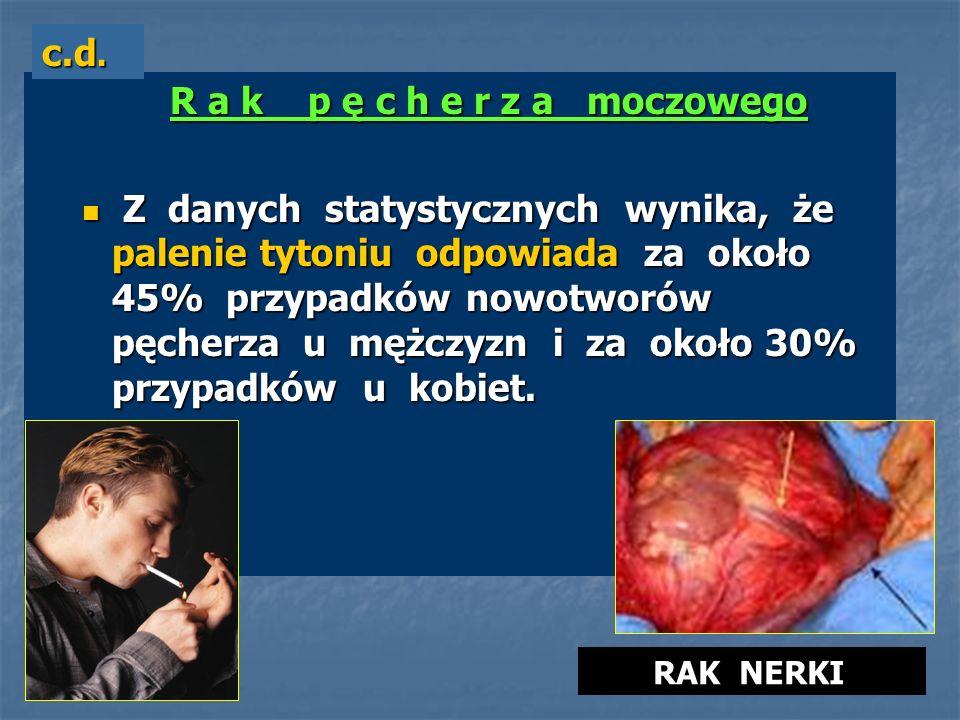 R a k p ę c h e r z a moczowego R a k p ę c h e r z a moczowego Z danych statystycznych wynika, że palenie tytoniu odpowiada za około 45% przypadków n