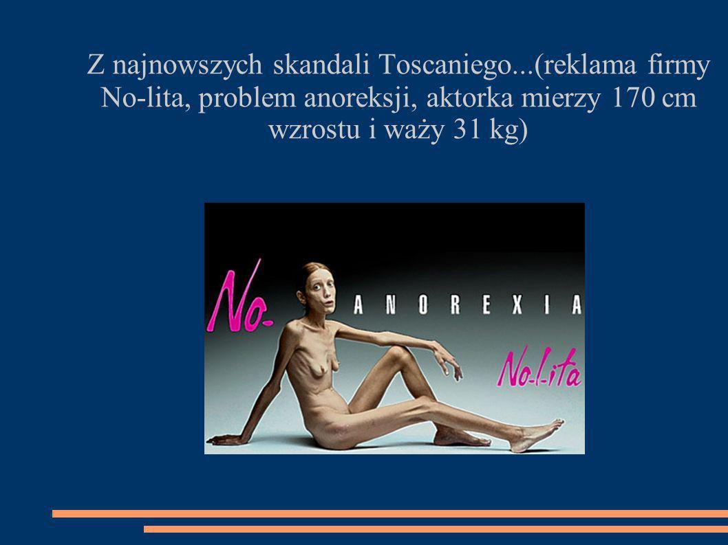 Z najnowszych skandali Toscaniego...(reklama firmy No-lita, problem anoreksji, aktorka mierzy 170 cm wzrostu i waży 31 kg)