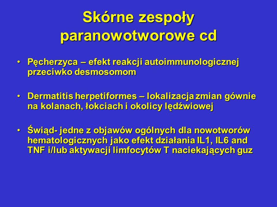 Kostno-stawowe zespoły paranowotworowe Osteoartropatia hipertoficzna – palce dobosza, periostitis dotyczące powierzchniowych warstw struktur kostnych, uogólnione zapalenie stwawów, zespół wymagający oprócz leczenia przyczynowego terapii objawowej niesterydowymi lekami przeciwzapalnymi lub sterydamiOsteoartropatia hipertoficzna – palce dobosza, periostitis dotyczące powierzchniowych warstw struktur kostnych, uogólnione zapalenie stwawów, zespół wymagający oprócz leczenia przyczynowego terapii objawowej niesterydowymi lekami przeciwzapalnymi lub sterydami Zapalenie stawów o charakterze autoimmunologicznymZapalenie stawów o charakterze autoimmunologicznym