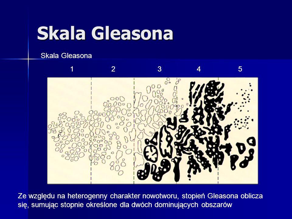 Skala Gleasona 1 23 4 5 Ze względu na heterogenny charakter nowotworu, stopień Gleasona oblicza się, sumując stopnie określone dla dwóch dominujących