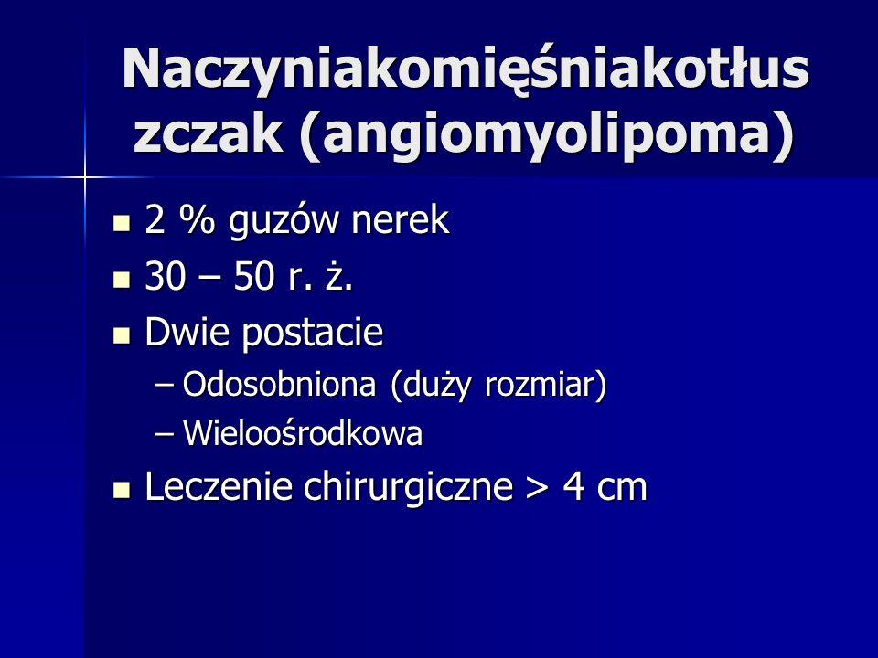 Naczyniakomięśniakotłus zczak (angiomyolipoma) 2 % guzów nerek 2 % guzów nerek 30 – 50 r.