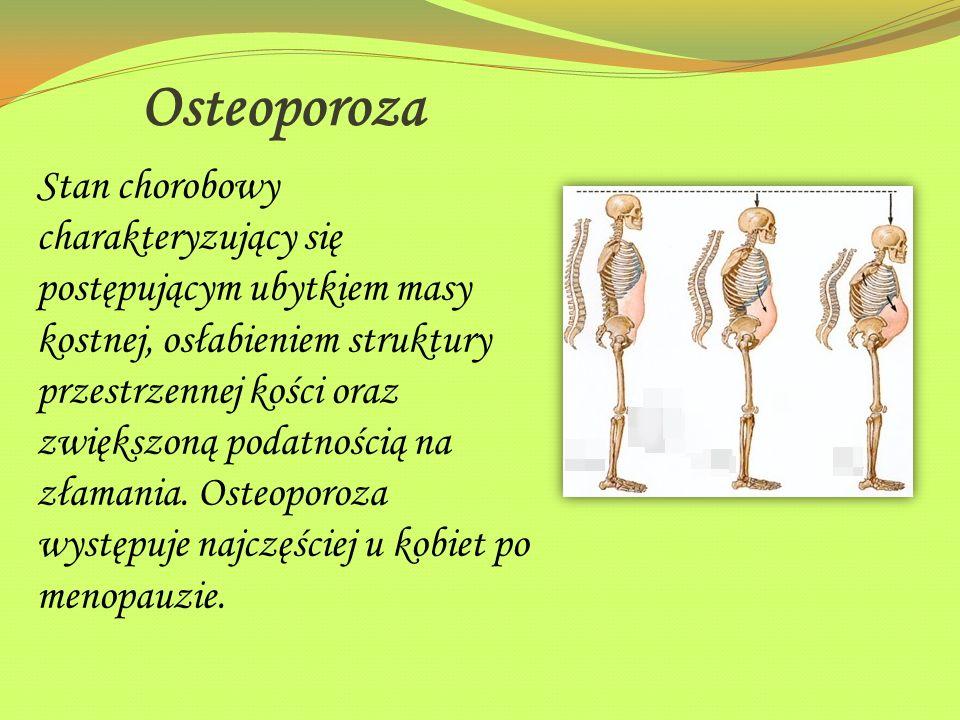 Osteoporoza Stan chorobowy charakteryzujący się postępującym ubytkiem masy kostnej, osłabieniem struktury przestrzennej kości oraz zwiększoną podatnoś