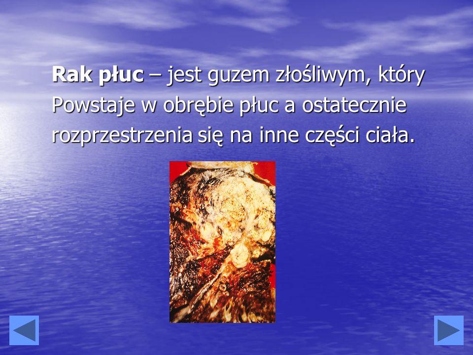 Rak płuc – jest guzem złośliwym, który Powstaje w obrębie płuc a ostatecznie rozprzestrzenia się na inne części ciała.