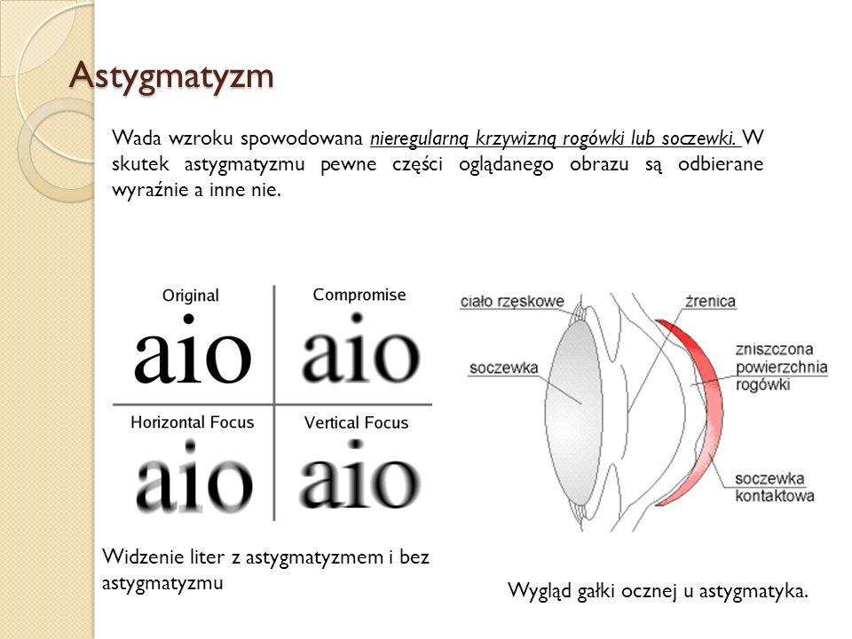 Astygmatyzm Wada wzroku spowodowana nieregularną krzywizną rogówki lub soczewki. W skutek astygmatyzmu pewne części oglądanego obrazu są odbierane wyr