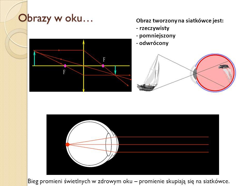Obrazy w oku… Obraz tworzony na siatkówce jest: - rzeczywisty - pomniejszony - odwrócony Bieg promieni świetlnych w zdrowym oku – promienie skupiają s