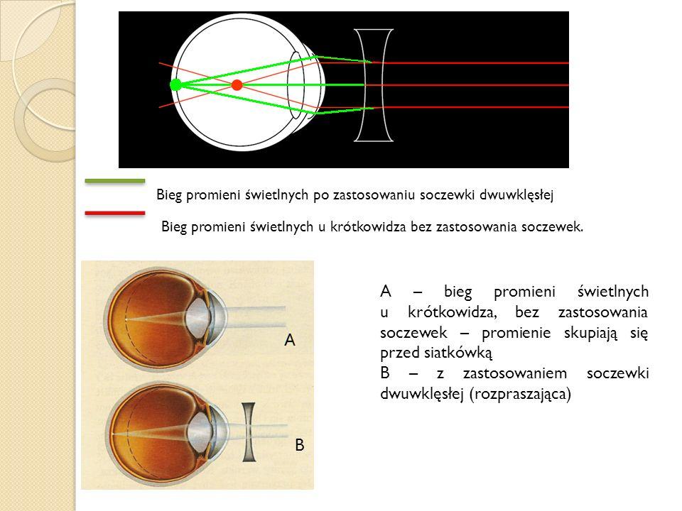 A – bieg promieni świetlnych u krótkowidza, bez zastosowania soczewek – promienie skupiają się przed siatkówką B – z zastosowaniem soczewki dwuwklęsłe