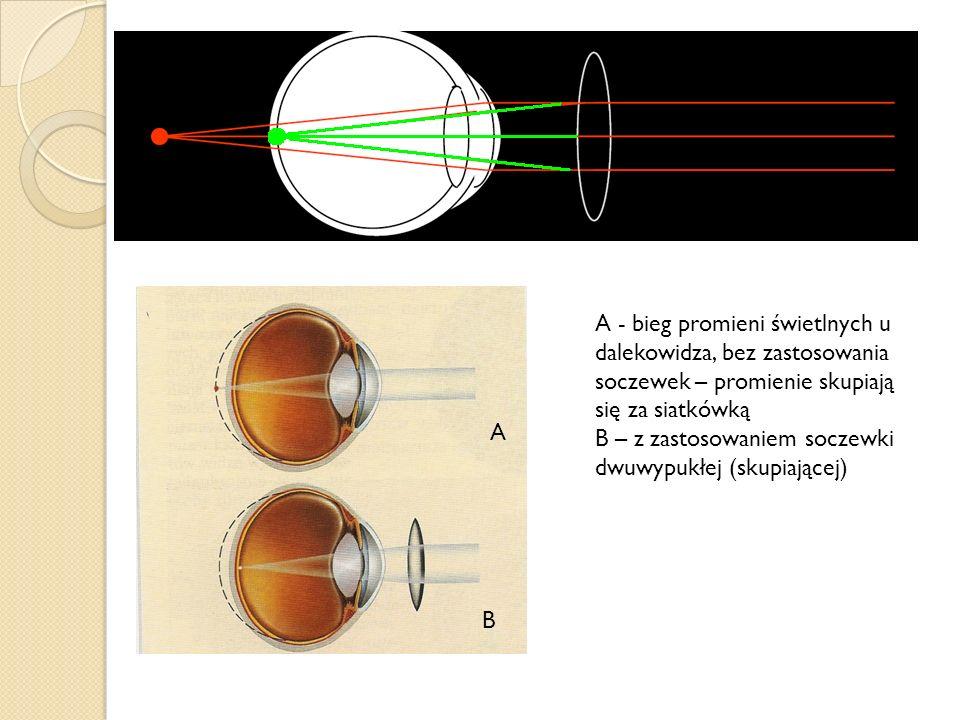 A - bieg promieni świetlnych u dalekowidza, bez zastosowania soczewek – promienie skupiają się za siatkówką B – z zastosowaniem soczewki dwuwypukłej (