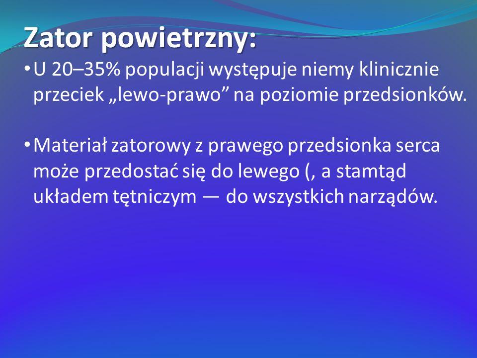 Zator powietrzny: U 20–35% populacji występuje niemy klinicznie przeciek lewo-prawo na poziomie przedsionków.