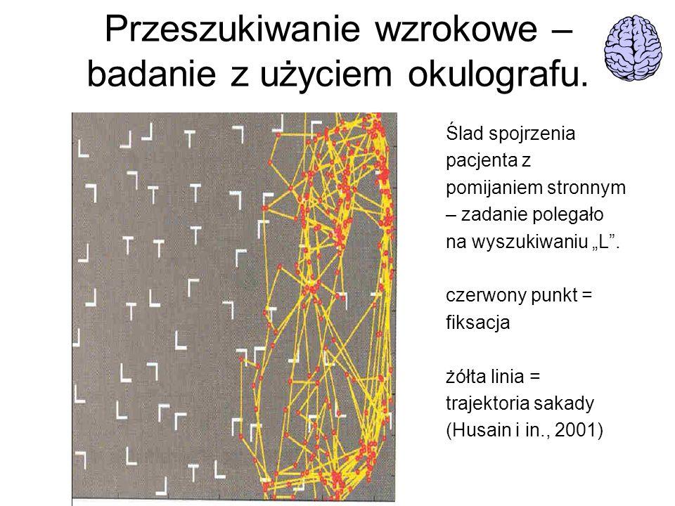 Przeszukiwanie wzrokowe – badanie z użyciem okulografu. Ślad spojrzenia pacjenta z pomijaniem stronnym – zadanie polegało na wyszukiwaniu L. czerwony