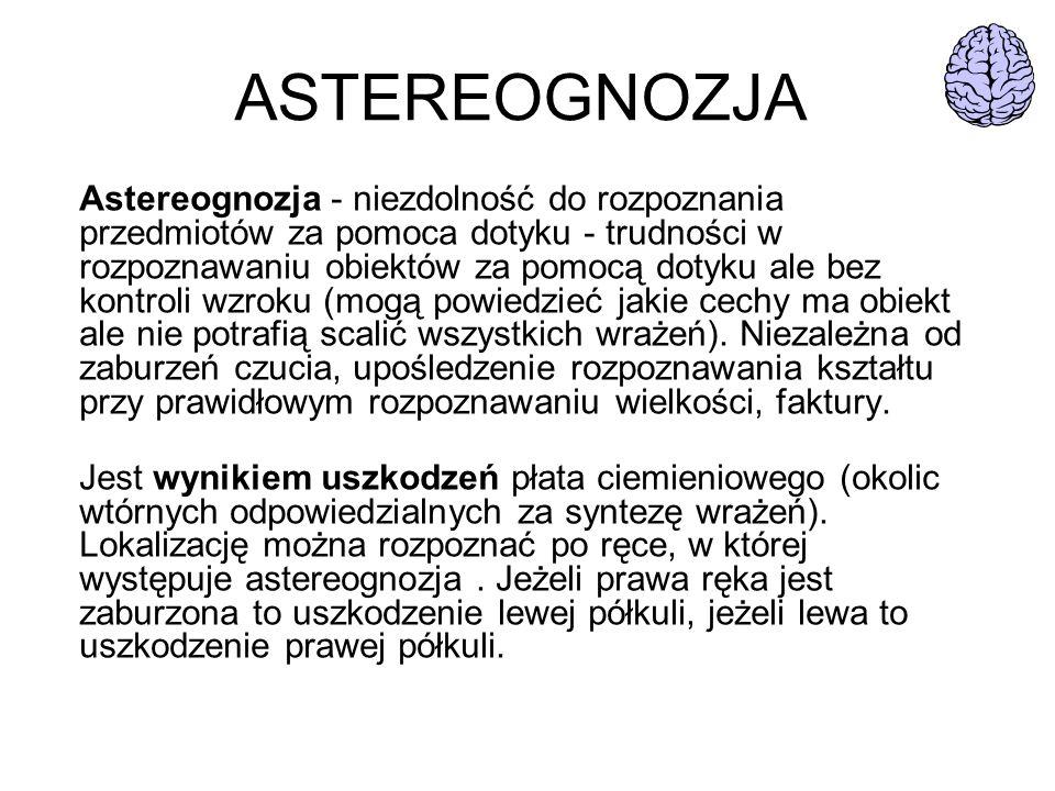 ASTEREOGNOZJA Astereognozja - niezdolność do rozpoznania przedmiotów za pomoca dotyku - trudności w rozpoznawaniu obiektów za pomocą dotyku ale bez ko