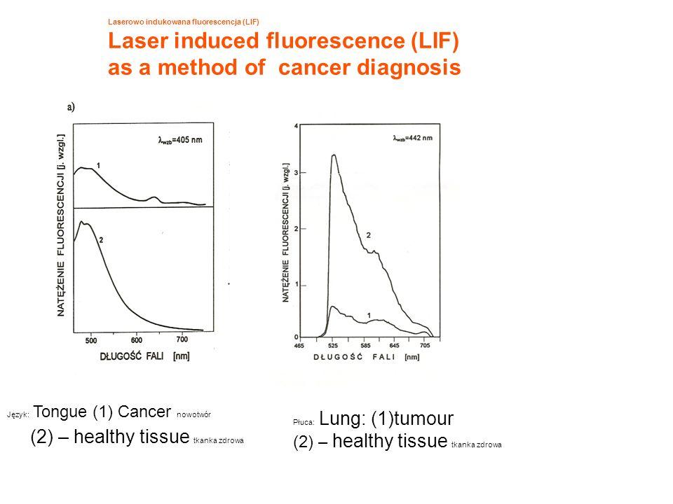 Laserowo indukowana fluorescencja (LIF) Laser induced fluorescence (LIF) as a method of cancer diagnosis Język: Tongue (1) Cancer nowotwór (2) – healt