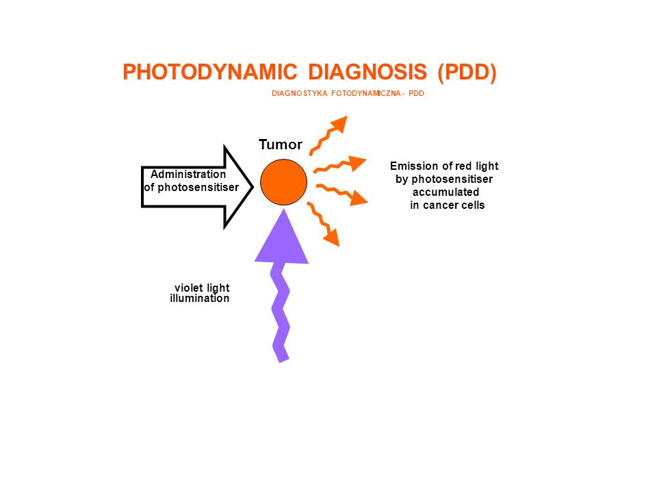 Administration of photosensitiser violet light illumination Emission of red light by photosensitiser accumulated in cancer cells Tumor PHOTODYNAMIC DI