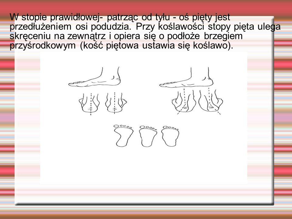 W stopie prawidłowej- patrząc od tyłu - oś pięty jest przedłużeniem osi podudzia. Przy koślawości stopy pięta ulega skręceniu na zewnątrz i opiera się