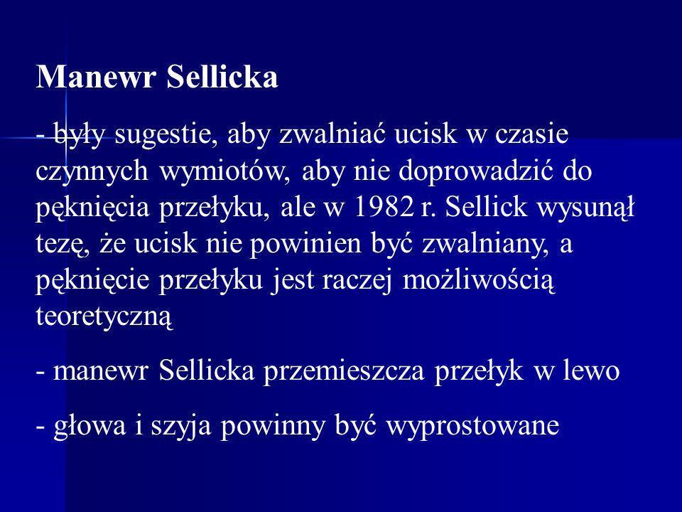 Manewr Sellicka - były sugestie, aby zwalniać ucisk w czasie czynnych wymiotów, aby nie doprowadzić do pęknięcia przełyku, ale w 1982 r. Sellick wysun