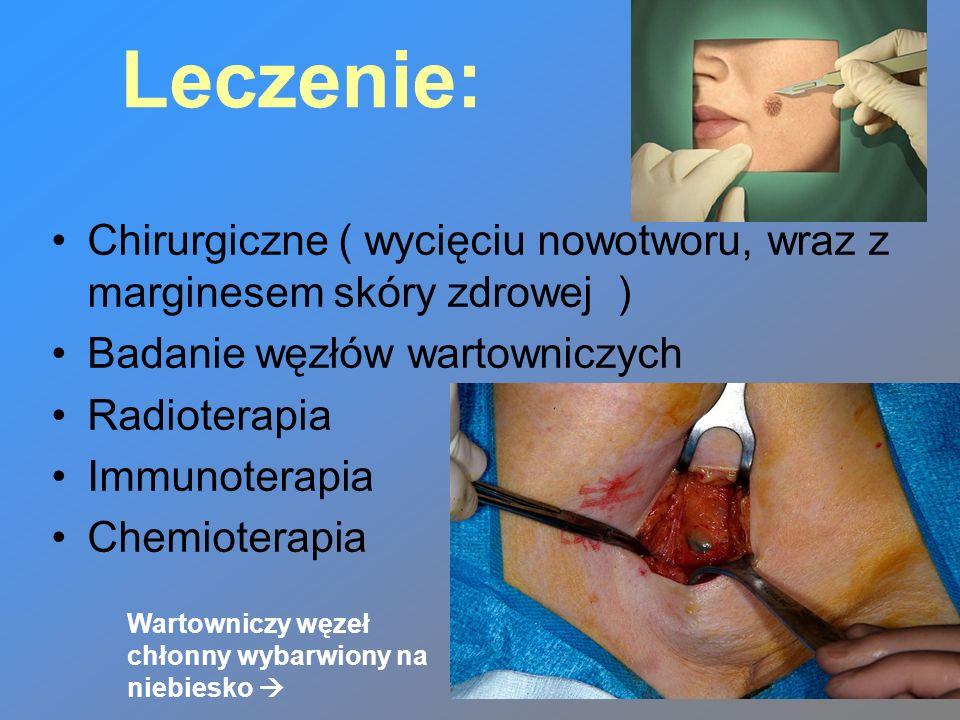 Leczenie: Chirurgiczne ( wycięciu nowotworu, wraz z marginesem skóry zdrowej ) Badanie węzłów wartowniczych Radioterapia Immunoterapia Chemioterapia W