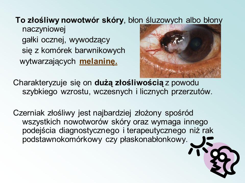 To złośliwy nowotwór skóry, błon śluzowych albo błony naczyniowej gałki ocznej, wywodzący się z komórek barwnikowych wytwarzających melaninę. Charakte