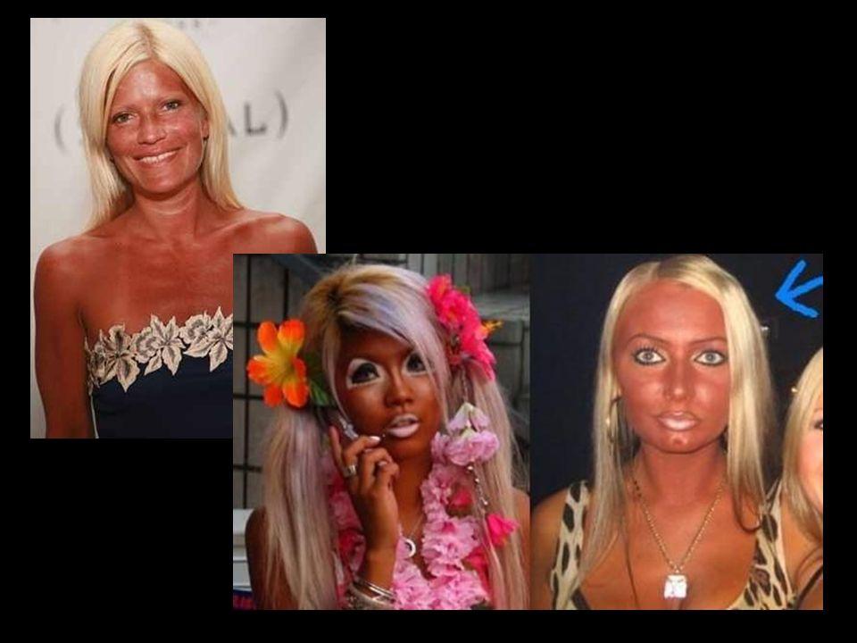 -oparzenia spowodowane popiołem odroślinnym -kolor skóry, włosów, oczu (rasa biała; jasna karnacja; rude lub blond włosy; niebieskie tęczówki; liczne piegi -skóra pergaminowa