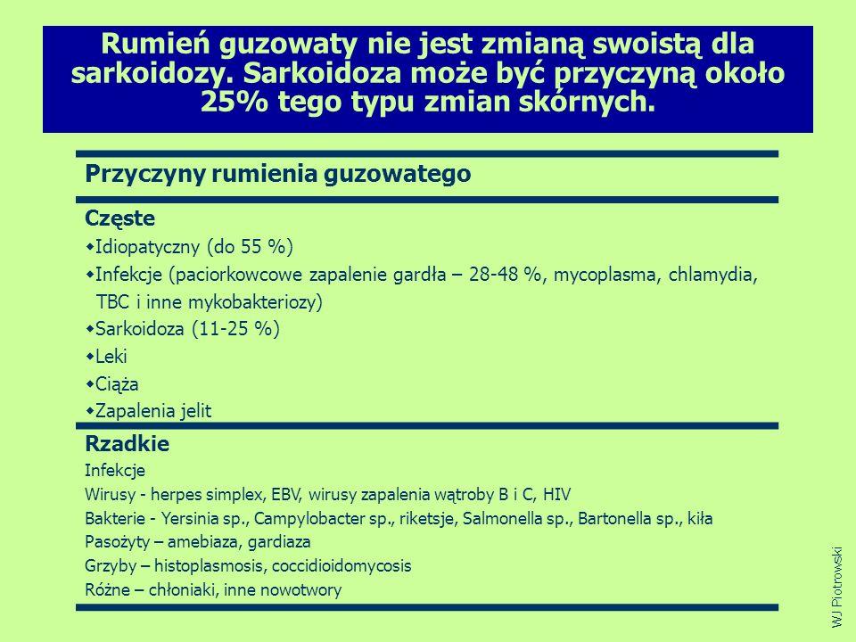 Rumień guzowaty nie jest zmianą swoistą dla sarkoidozy. Sarkoidoza może być przyczyną około 25% tego typu zmian skórnych. Przyczyny rumienia guzowateg