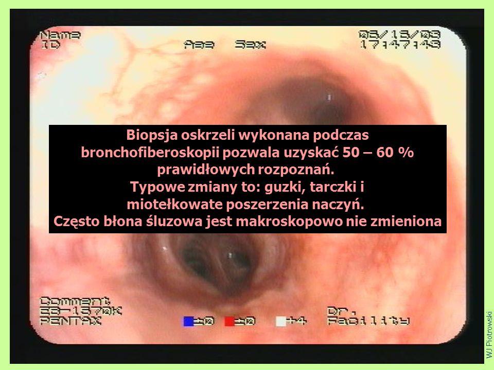 ciupa4 WJ Piotrowski Biopsja oskrzeli wykonana podczas bronchofiberoskopii pozwala uzyskać 50 – 60 % prawidłowych rozpoznań. Typowe zmiany to: guzki,