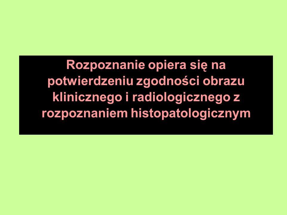 Rozpoznanie opiera się na potwierdzeniu zgodności obrazu klinicznego i radiologicznego z rozpoznaniem histopatologicznym