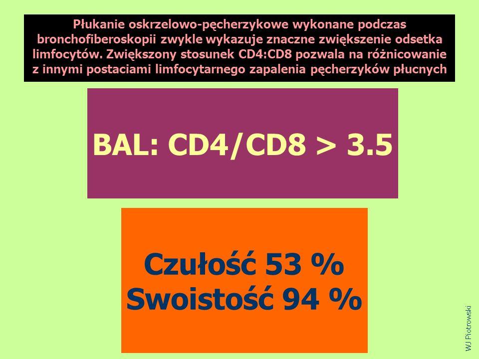 BAL: CD4/CD8 > 3.5 Czułość 53 % Swoistość 94 % WJ Piotrowski Płukanie oskrzelowo-pęcherzykowe wykonane podczas bronchofiberoskopii zwykle wykazuje zna