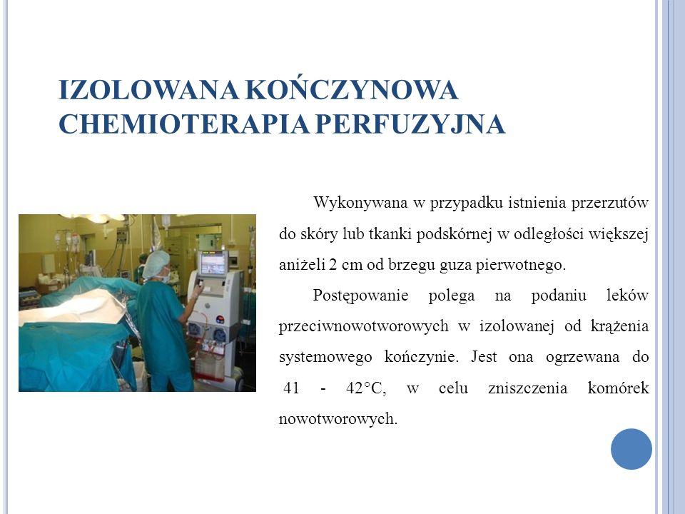 IZOLOWANA KOŃCZYNOWA CHEMIOTERAPIA PERFUZYJNA Wykonywana w przypadku istnienia przerzutów do skóry lub tkanki podskórnej w odległości większej aniżeli 2 cm od brzegu guza pierwotnego.