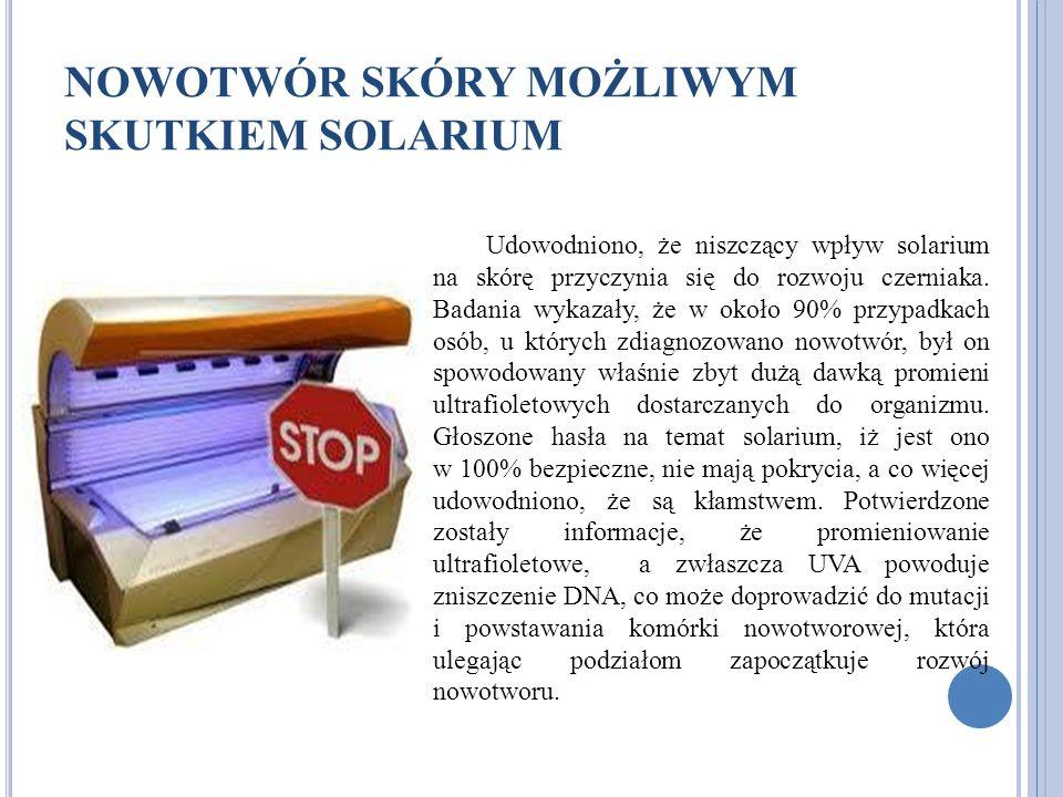 NOWOTWÓR SKÓRY MOŻLIWYM SKUTKIEM SOLARIUM Udowodniono, że niszczący wpływ solarium na skórę przyczynia się do rozwoju czerniaka. Badania wykazały, że