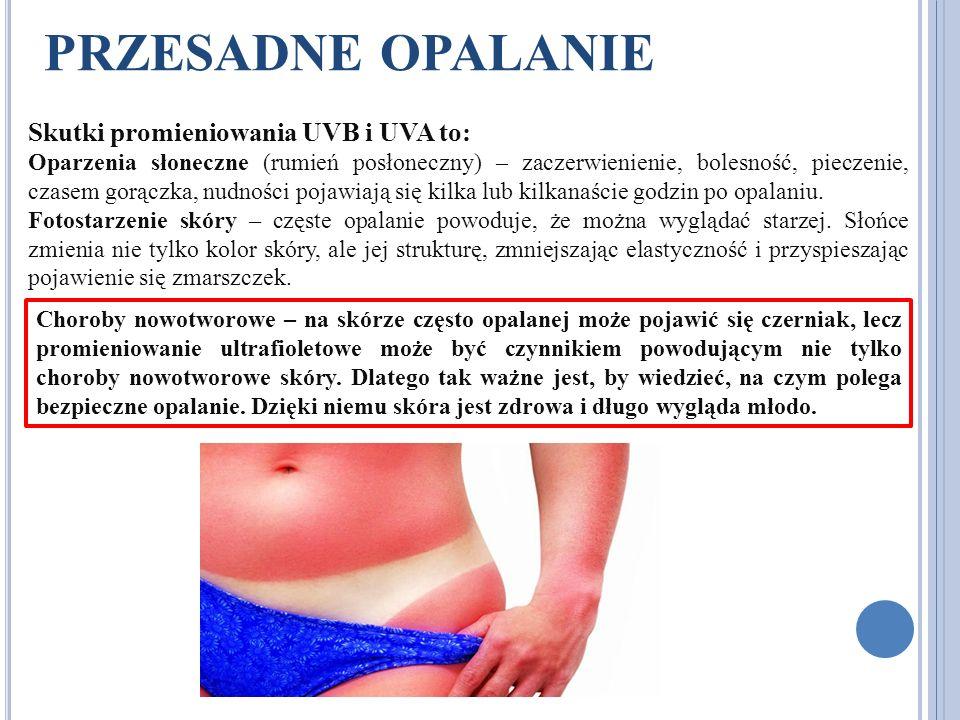 PRZESADNE OPALANIE Skutki promieniowania UVB i UVA to: Oparzenia słoneczne (rumień posłoneczny) – zaczerwienienie, bolesność, pieczenie, czasem gorącz