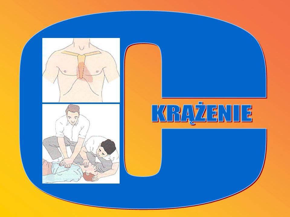 O OBJAWY -poszkodowany nieprzytomny -możliwy brak tętna P POSTĘPOWANIE -ułożyć ratowanego z głową umieszczoną nieco niżej od poziomu tułowia -udrożnić, oczyścić jamę ustną -rozpocząć sztuczne oddychanie metodą usta-usta -w przypadku braku tętna rozpocząć pośredni masaż serca -wezwać fachową pomoc